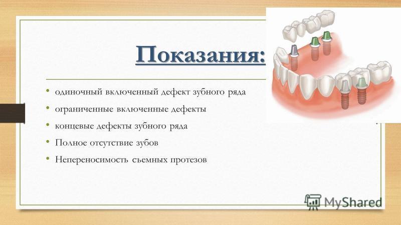 Показания: одиночный включенный дефект зубного ряда ограниченные включенные дефекты концевые дефекты зубного ряда Полное отсутствие зубов Непереносимость съемных протезов