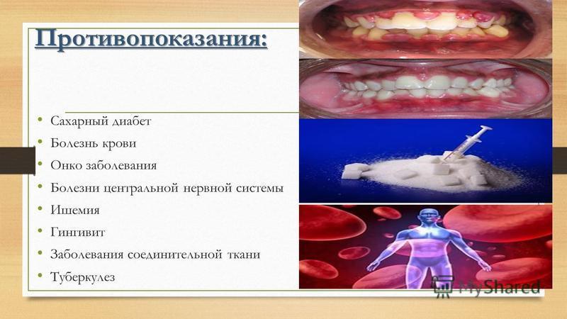 Противопоказания: Сахарный диабет Болезнь крови Онко заболевания Болезни центральной нервной системы Ишемия Гингивит Заболевания соединительной ткани Туберкулез