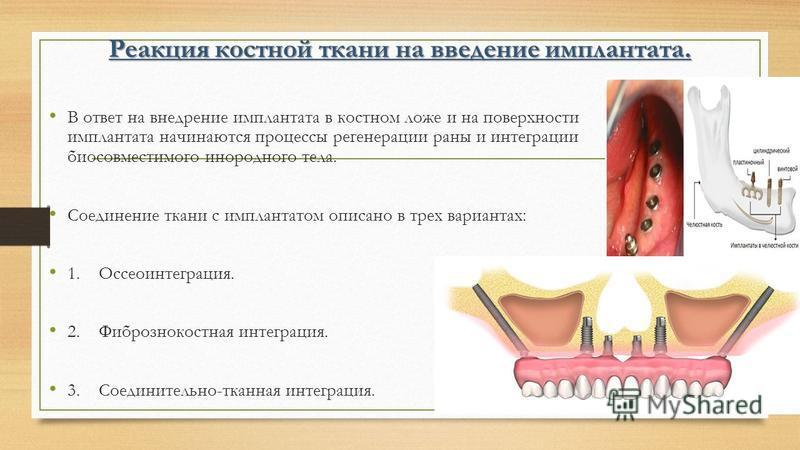 Реакция костной ткани на введение имплантата. В ответ на внедрение имплантата в костном ложе и на поверхности имплантата начинаются процессы регенерации раны и интеграции био совместимого инородного тела. Соединение ткани с имплантатом описано в трех