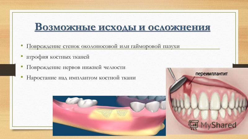 Возможные исходы и осложнения Повреждение стенок околоносовой или гайморовой пазухи атрофия костных тканей Повреждение нервов нижней челюсти Наростание над имплантом костной ткани