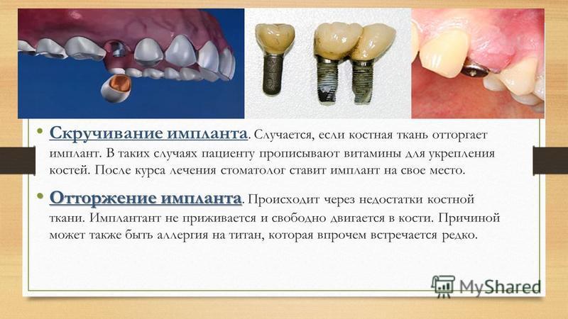 Скручивание импланта. Случается, если костная ткань отторгает имплант. В таких случаях пациенту прописывают витамины для укрепления костей. После курса лечения стоматолог ставит имплант на свое место. Отторжение импланта Отторжение импланта. Происход