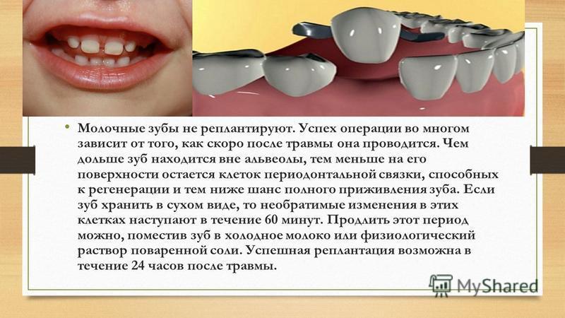 Молочные зубы не реплантируют. Успех операции во многом зависит от того, как скоро после травмы она проводится. Чем дольше зуб находится вне альвеолы, тем меньше на его поверхности остается клеток периодонтальной связки, способных к регенерации и тем