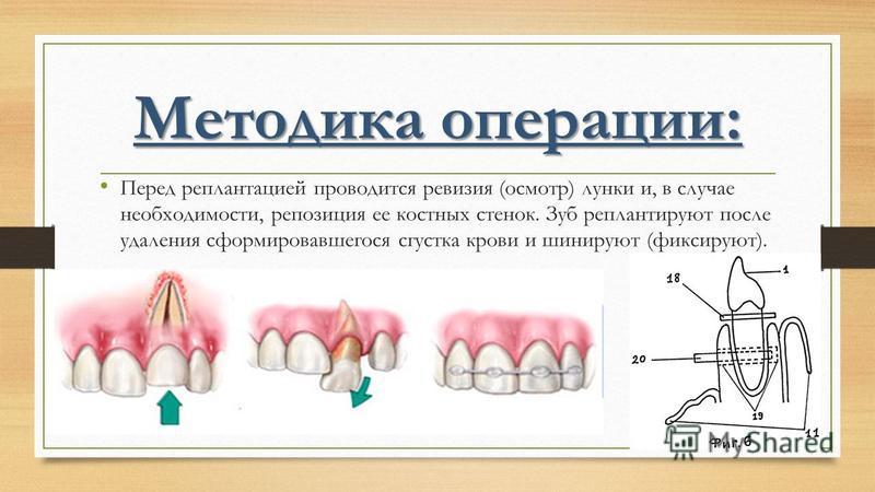 Методика операции: Перед реплантацией проводится ревизия (осмотр) лунки и, в случае необходимости, репозиция ее костных стенок. Зуб реплантируют после удаления сформировавшегося сгустка крови и шинируют (фиксируют).