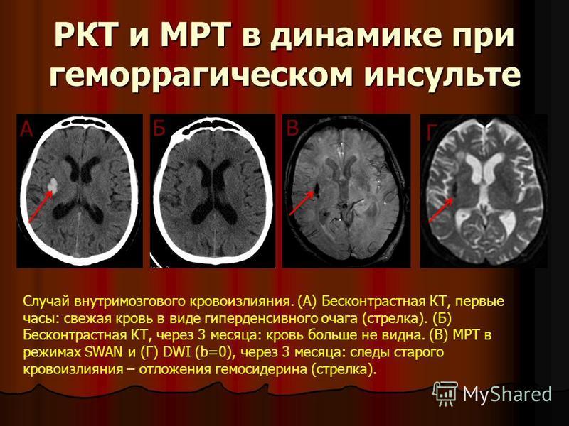 РКТ и МРТ в динамике при геморрагическом инсульте Случай внутримозгового кровоизлияния. (А) Бесконтрастная КТ, первые часы: свежая кровь в виде гиперденсивного очага (стрелка). (Б) Бесконтрастная КТ, через 3 месяца: кровь больше не видна. (В) МРТ в р