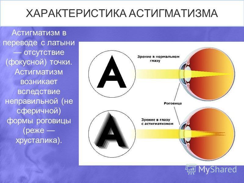ХАРАКТЕРИСТИКА АСТИГМАТИЗМА Астигматизм в переводе с латыни отсутствие (фокусной) точки. Астигматизм возникает вследствие неправильной (не сферичной) формы роговицы (реже хрусталика).