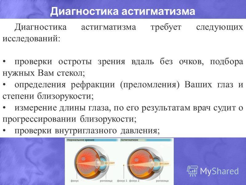 Диагностика астигматизма Диагностика астигматизма требует следующих исследований: проверки остроты зрения вдаль без очков, подбора нужных Вам стекол; определения рефракции (преломления) Ваших глаз и степени близорукости; измерение длины глаза, по его