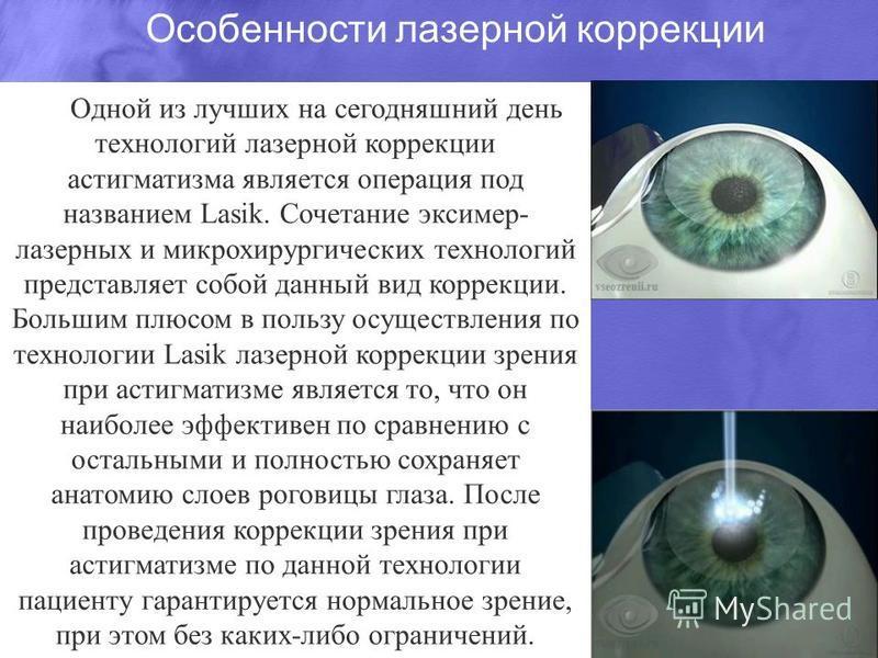 Особенности лазерной коррекции Одной из лучших на сегодняшний день технологий лазерной коррекции астигматизма является операция под названием Lasik. Сочетание эксимер- лазерных и микрохирургических технологий представляет собой данный вид коррекции.