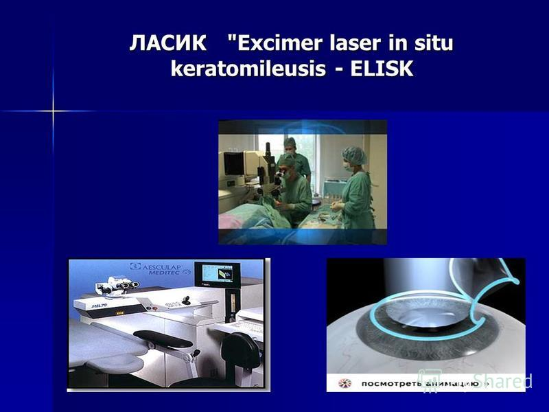 ЛАСИК Excimer laser in situ keratomileusis - ELISK