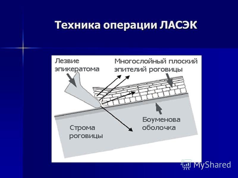 Техника операции ЛАСЭК