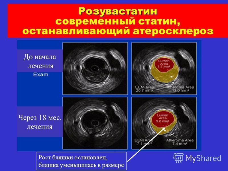 Розувастатен современный статен, останавливающий атеросклероз До начала лечения Через 18 мес. лечения Рост бляшки остановлен, бляшка уменьшилась в размере