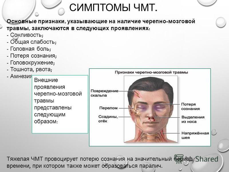 СИМПТОМЫ ЧМТ. Основные признаки, указывающие на наличие черепно - мозговой травмы, заключаются в следующих проявлениях : - Сонливость ; - Общая слабость ; - Головная боль ; - Потеря сознания ; - Головокружение ; - Тошнота, рвота ; - Амнезия Тяжелая Ч