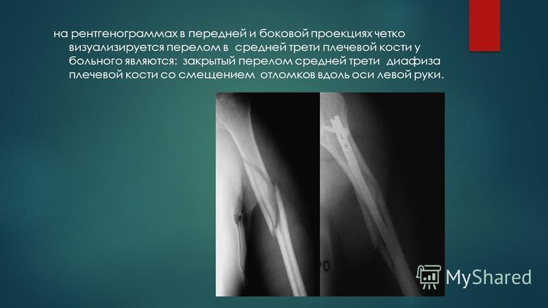 на рентгенограммах в передней и боковой проекциях четко визуализируется перелом в средней трети плечевой кости у больного являются: закрытый перелом средней трети диафиза плечевой кости со смещением отломков вдоль оси левой руки.