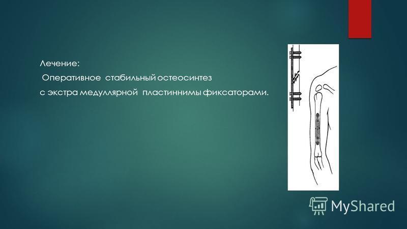 Лечение: Оперативное стабильный остеосинтез с экстра медуллярной пластиннимы фиксаторами.