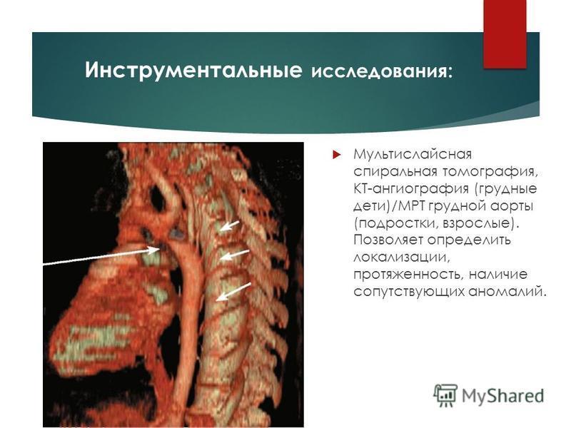 Инструментальные исследования: Мультислайсная спиральная томография, КТ-ангиография (грудные дети)/МРТ грудной аорты (подростки, взрослые). Позволяет определить локализации, протяженность, наличие сопутствующих аномалий.