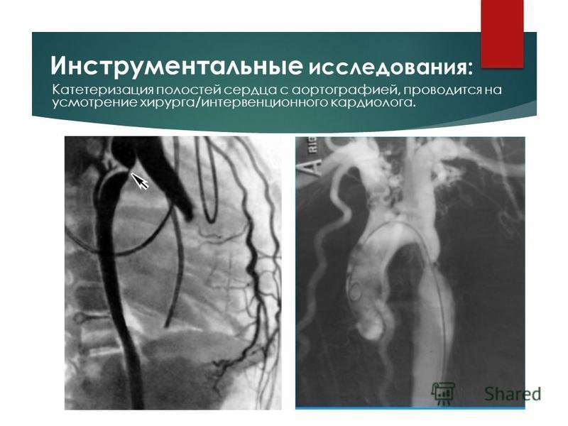 Катетеризация полостей сердца с аортографией, проводится на усмотрение хирурга/интервенционного кардиолога.