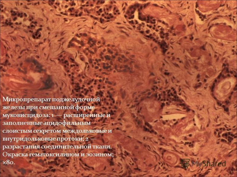 Микропрепарат поджелудочной железы при смешанной форме муковисцидоза: 1 расширенные и заполненные ацидофильным слоистым секретом междольковые и внутридольковые протоки; 2 разрастания соединительной ткани. Окраска гематоксилином и эозином; ×80.