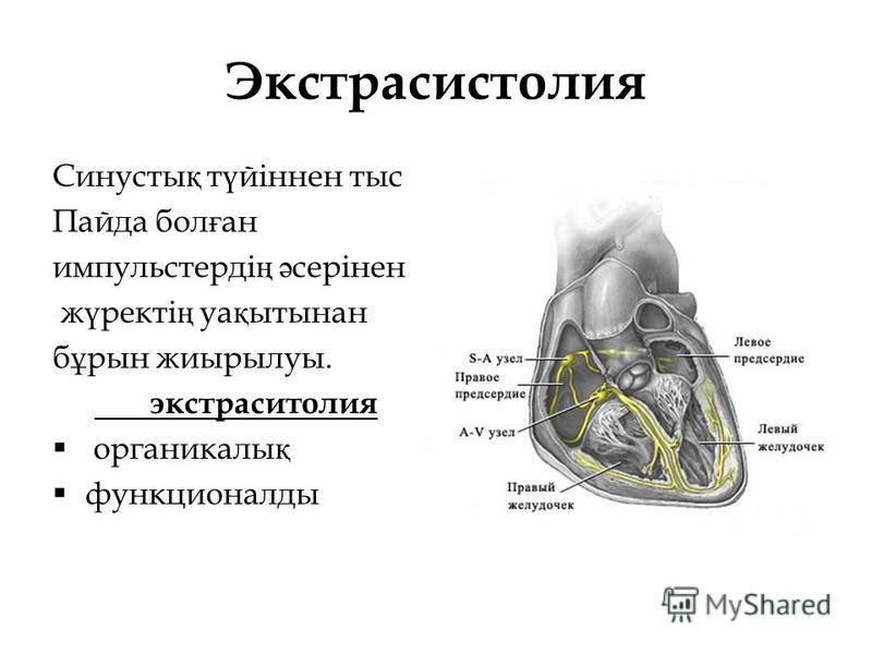 Экстрасистолия Синусты қ т ү йіннен тыс Пайда бол ғ ан импульстерді ң ә серінен ж ү ректі ң уа қ ытынан б ұ рын жиырылуы. экстраситолия органикалы қ функционалды