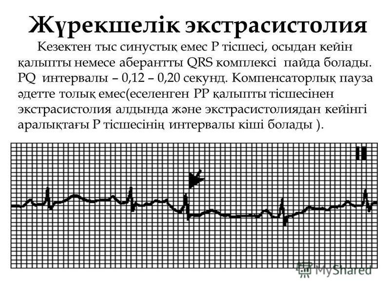 Ж ү рекшелік экстрасистолия Кезектен тыс синусты қ емес Р тісшесі, осыдан кейін қ алыпты немесе аберантты QRS комплексі пайда болады. РQ интервалы – 0,12 – 0,20 секунд. Компенсаторлы қ пауза ә детте толы қ емес(еселенген РР қ алыпты тісшесінен экстра