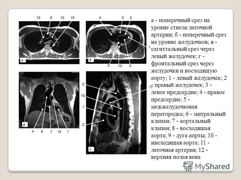 а - поперечный срез на уровне ствола летгочной артерии; б - поперечный срез на уровне желудочков; в - сагиттальный срез через летвый желудочек; г - фронтальный срез через желудочки и восходящую аорту; 1 - летвый желудочек; 2 - правый желудочек; 3 - л