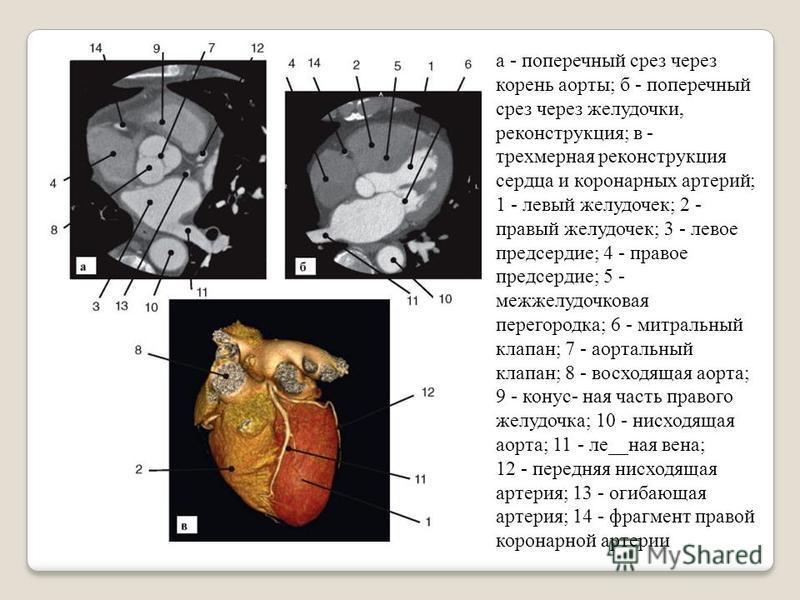а - поперечный срез через корень аорты; б - поперечный срез через желудочки, реконструкция; в - трехмерная реконструкция сердца и коронарных артерий; 1 - летвый желудочек; 2 - правый желудочек; 3 - летвое предсердие; 4 - правое предсердие; 5 - межжел