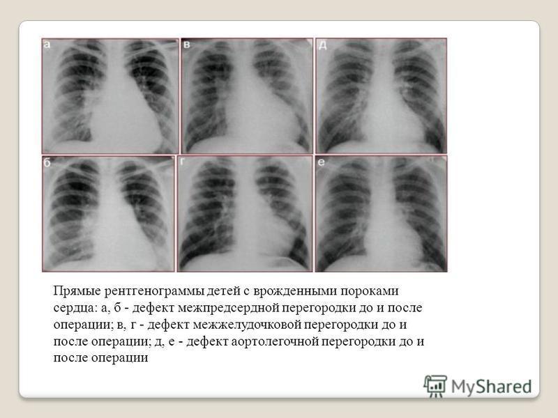 Прямые рентгенограммы детей с врожденными пороками сердца: а, б - дефект межпредсердной перегородки до и послет операции; в, г - дефект межжелудочковой перегородки до и послет операции; д, е - дефект аортолетгочной перегородки до и послет операции