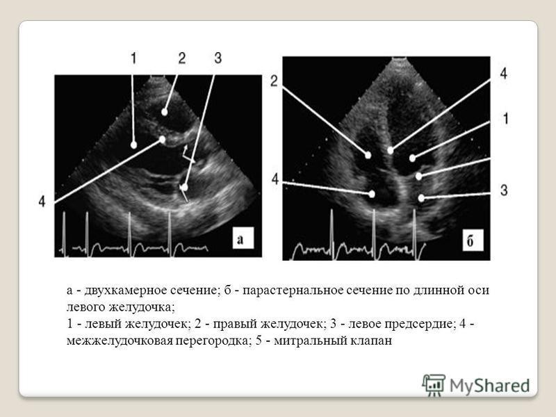 а - двухкамерное сечение; б - парастернальное сечение по длинной оси летвого желудочка; 1 - летвый желудочек; 2 - правый желудочек; 3 - летвое предсердие; 4 - межжелудочковая перегородка; 5 - митральный клапан