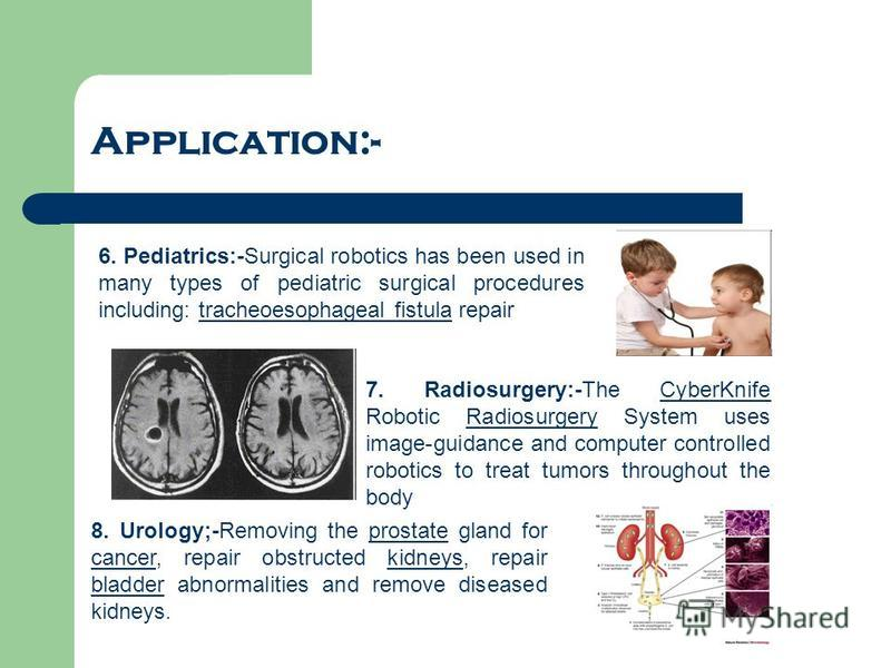 Application:- 6. Pediatrics:-Surgical robotics has been used in many types of pediatric surgical procedures including: tracheoesophageal fistula repairtracheoesophageal fistula 7. Radiosurgery:-The CyberKnife Robotic Radiosurgery System uses image-gu