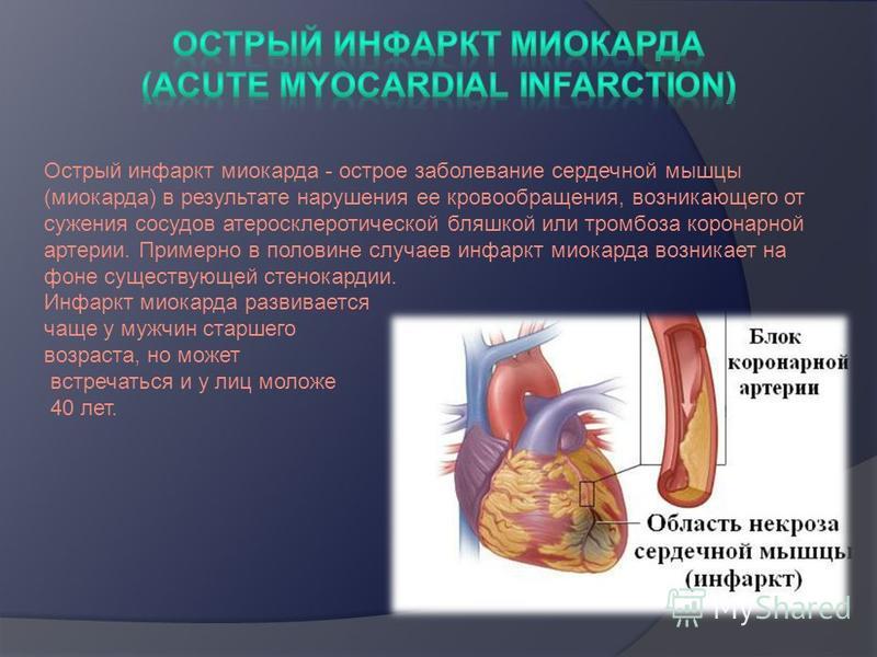 Острый инфаркт миокарда - острое заболевание сердечной мышцы (миокарда) в результате нарушения ее кровообращения, возникающего от сужения сосудов атеросклеротической бляшкой или тромбоза коронарной артерии. Примерно в половине случаев инфаркт миокард