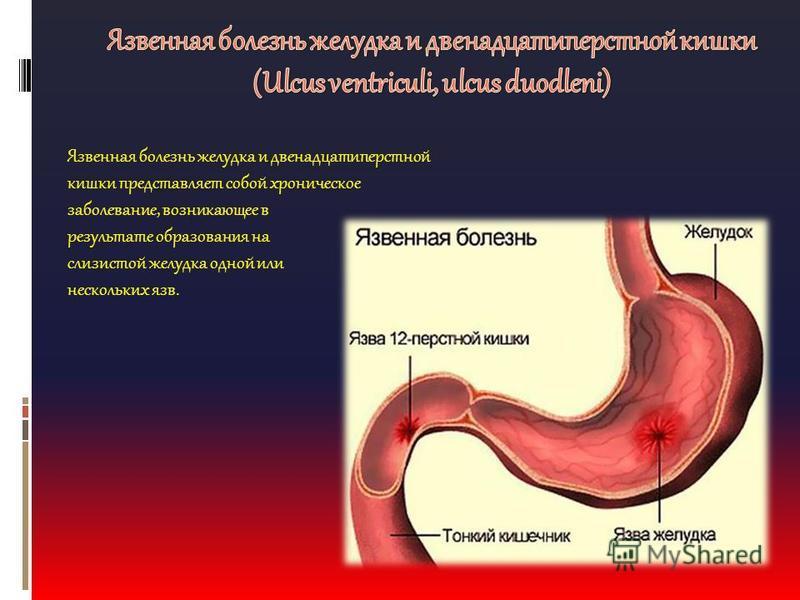 сне язвенная болезнь желудка реферат чем секрет