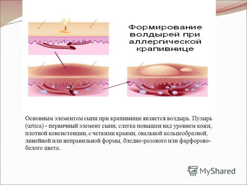 Основным элементом сыпи при крапивнице является волдырь. Пузырь (urtica) - первичный элемент сыпи, слегка повышен над уровнем кожи, плотной консистенции, с четкими краями, овальной кольцеобразной, линейной или неправильной формы, бледно-розового или
