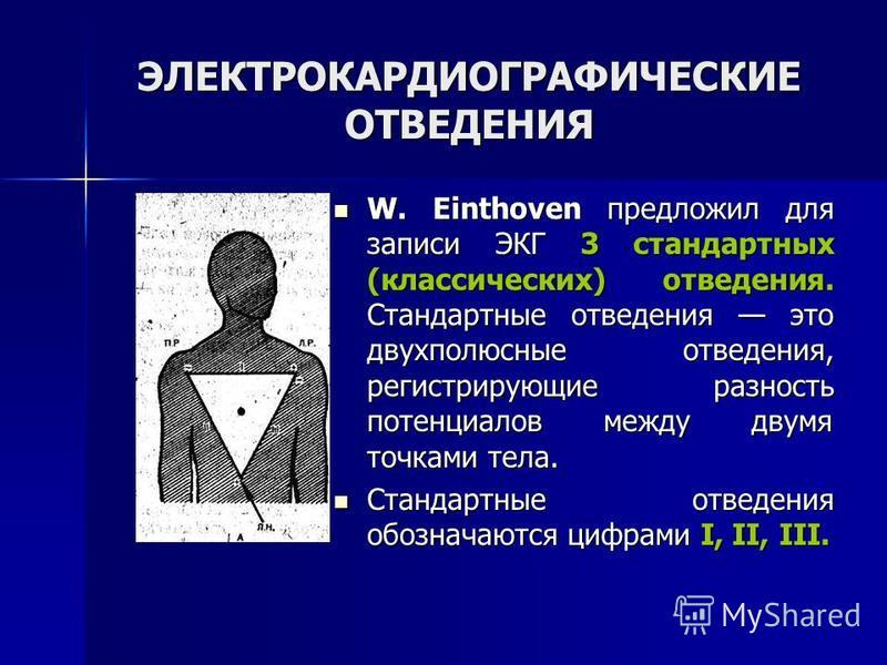 ЭЛЕКТРОКАРДИОГРАФИЧЕСКИЕ ОТВЕДЕНИЯ W. Einthoven предложил для записи ЭКГ 3 стандартных (классических) отведения. Стандартные отведения это двухполюсные отведения, регистрирующие разность потенциалов между двумя точками тела. W. Einthoven предложил дл