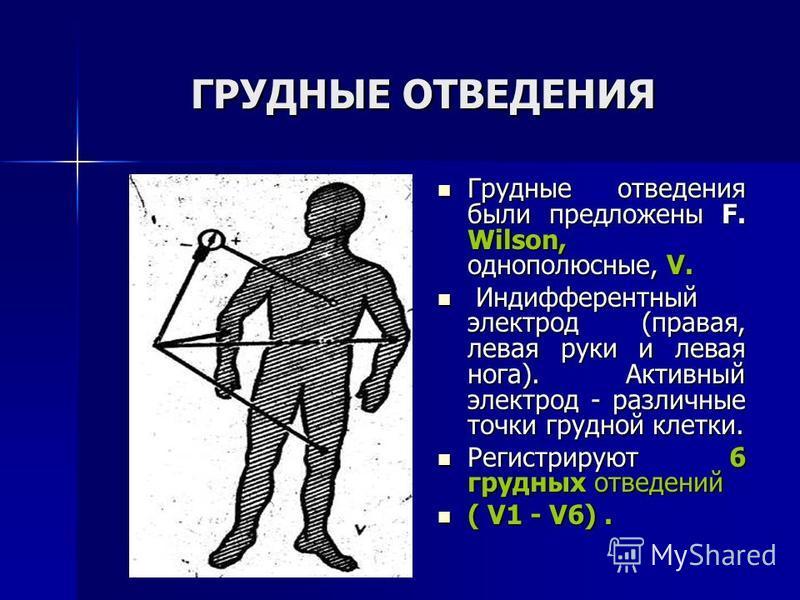 ГРУДНЫЕ ОТВЕДЕНИЯ Грудные отведения были предложены F. Wilson, однополюсные, V. Грудные отведения были предложены F. Wilson, однополюсные, V. Индифферентный электрод (правая, левая руки и левая нога). Активный электрод - различные точки грудной клетк