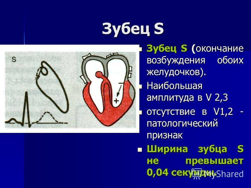 Зубец S Зубец S (окончание возбуждения обоих желудочков). Зубец S (окончание возбуждения обоих желудочков). Наибольшая амплитуда в V 2,3 Наибольшая амплитуда в V 2,3 отсутствие в V1,2 - патологический признак отсутствие в V1,2 - патологический призна