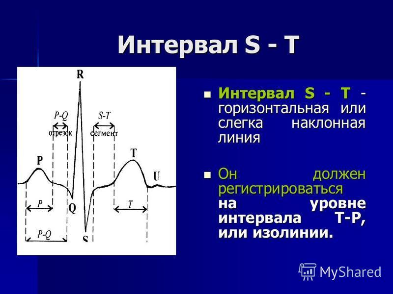 Интервал S - Т Интервал S - Т - горизонтальная или слегка наклонная линия Интервал S - Т - горизонтальная или слегка наклонная линия Он должен регистрироваться на уровне интервала Т-Р, или изолинии. Он должен регистрироваться на уровне интервала Т-Р,