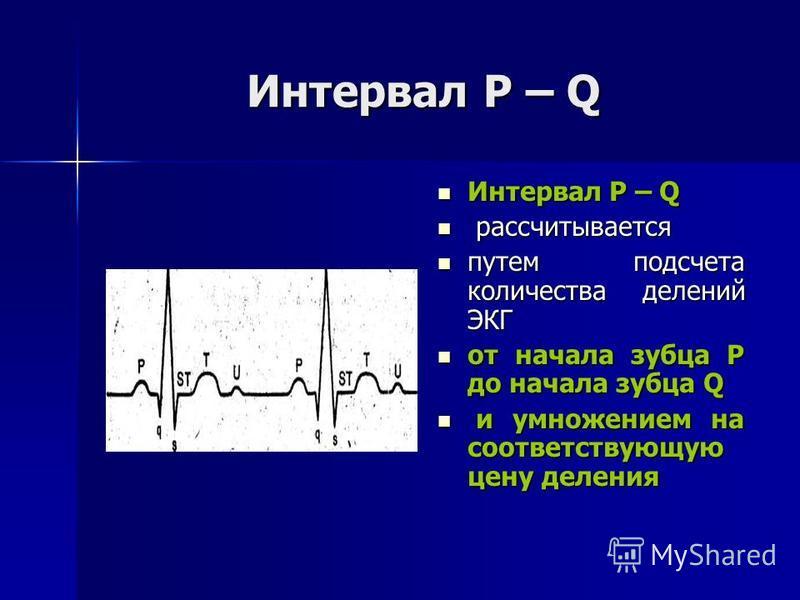 Интервал Р – Q Интервал Р – Q Интервал Р – Q рассчитывается рассчитывается путем подсчета количества делений ЭКГ путем подсчета количества делений ЭКГ от начала зубца Р до начала зубца Q от начала зубца Р до начала зубца Q и умножением на соответству