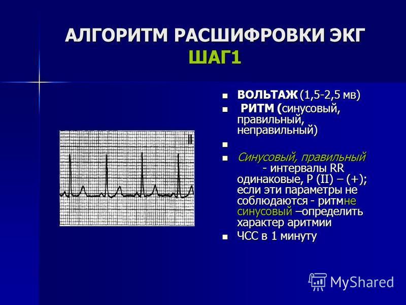 АЛГОРИТМ РАСШИФРОВКИ ЭКГ ШАГ1 ВОЛЬТАЖ (1,5-2,5 мв) ВОЛЬТАЖ (1,5-2,5 мв) РИТМ (синусовый, правильный, неправильный) РИТМ (синусовый, правильный, неправильный) Синусовый, правильный - интервалы RR одинаковые, Р (II) – (+); если эти параметры не соблюда