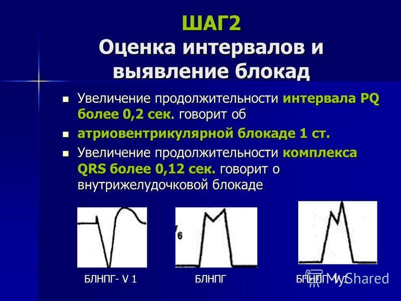 ШАГ2 Оценка интервалов и выявление блокад Увеличение продолжительности интервала РQ более 0,2 сек. говорит об Увеличение продолжительности интервала РQ более 0,2 сек. говорит об атриовентрикулярной блокаде 1 ст. атриовентрикулярной блокаде 1 ст. Увел