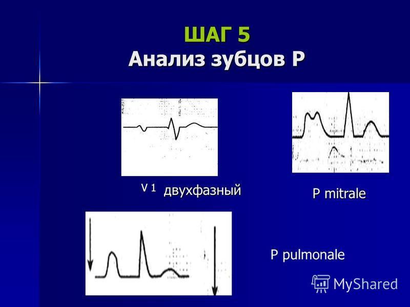 ШАГ 5 Анализ зубцов Р V 1 двухфазный P mitrale P pulmonale