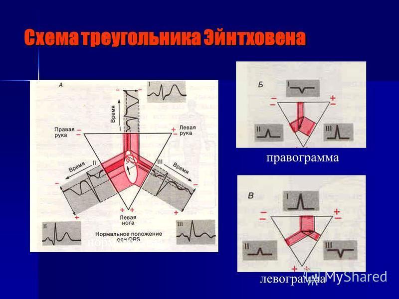 Схема треугольника Эйнтховена правограмма левограмма нормограмма