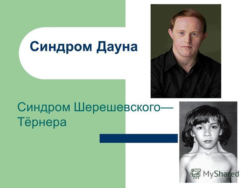 Синдром Дауна Синдром Шерешевсякого Тётренера