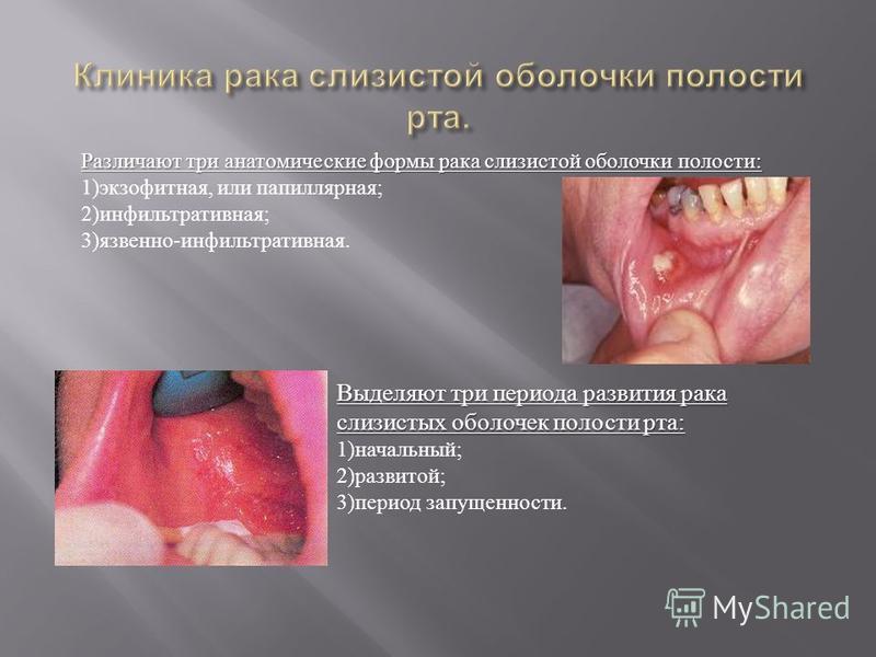 Различают три анатомические формы рака слизистой оболочки полости : Различают три анатомические формы рака слизистой оболочки полости : 1) экзофитная, или папиллярная ; 2) инфильтративная ; 3) язвенно - инфильтративная. Выделяют три периода развития