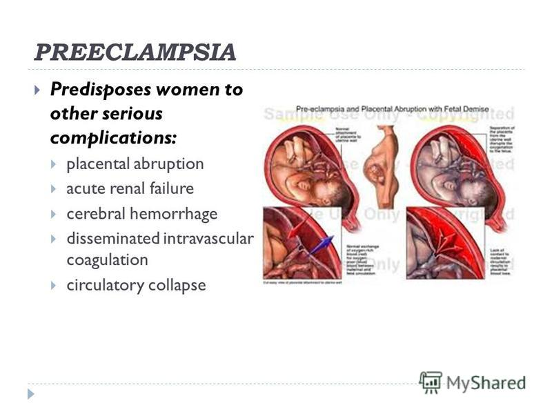 PREECLAMPSIA Predisposes women to other serious complications: placental abruption acute renal failure cerebral hemorrhage disseminated intravascular coagulation circulatory collapse