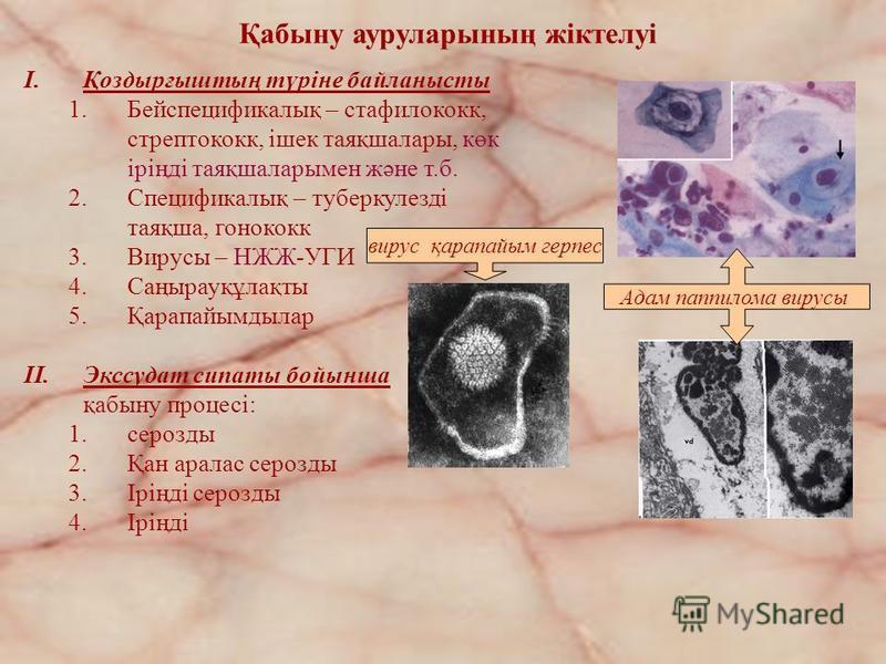 Қабыну ауруларының жіктелуі I.Қоздырғыштың түріне байланысты 1.Бейспецификалық – стафилококк, стрептококк, ішек таяқшалары, көк іріңді таяқшаларымен және т.б. 2.Спецификалық – туберкулезді таяқша, гонококк 3.Вирусы – НЖЖ-УГИ 4.Саңырауқұлақты 5.Қарапа