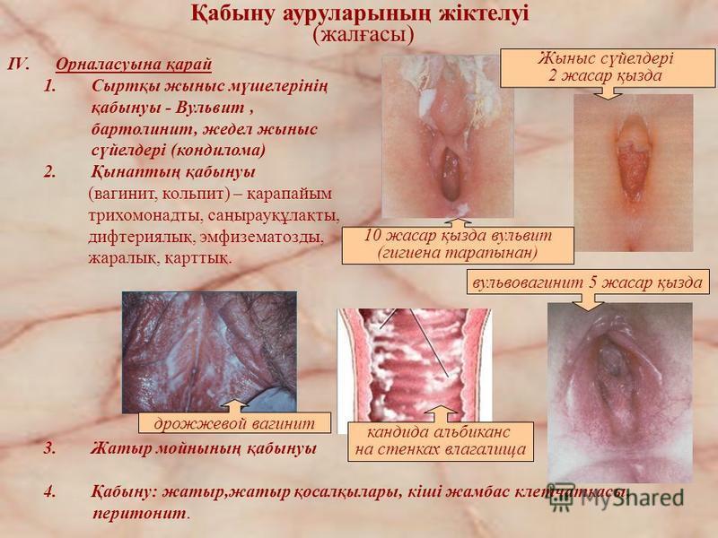 IV.Орналасуына қарай 1.Сыртқы жыныс мүшелерінің қабынуы - Вульвит, бартолинит, жедел жыныс сүйелдері (кондилома) 2.Қынаптың қабынуы (вагинит, кольпит) – қарапайым трихомонадты, саңырауқұлақты, дифтериялық, эмфизематозды, жаралық, қарттық. дрожжевой в