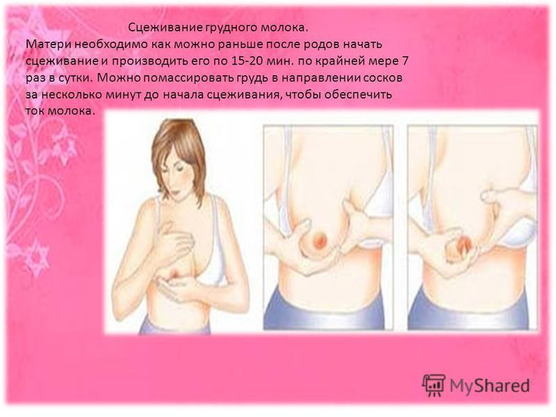 Сцеживание грудного молока. Матери необходимо как можно раньше после родов начать сцеживание и производить его по 15-20 мин. по крайней мере 7 раз в сутки. Можно помассировать грудь в направлении сосков за несколько минут до начала сцеживания, чтобы