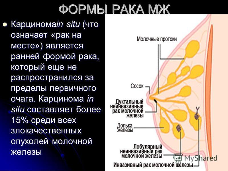 ФОРМЫ РАКА МЖ Карциномаin situ (что означает «рак на месте») является ранней формой рака, который еще не распространился за пределы первичного очага. Карцинома in situ составляет более 15% среди всех злокачественных опухолей молочной железы Карцином