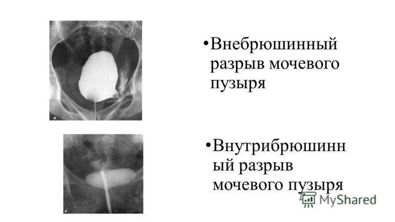 Внебрюшинный разрыв мочевого пузыря Внутрибрюшинн ый разрыв мочевого пузыря