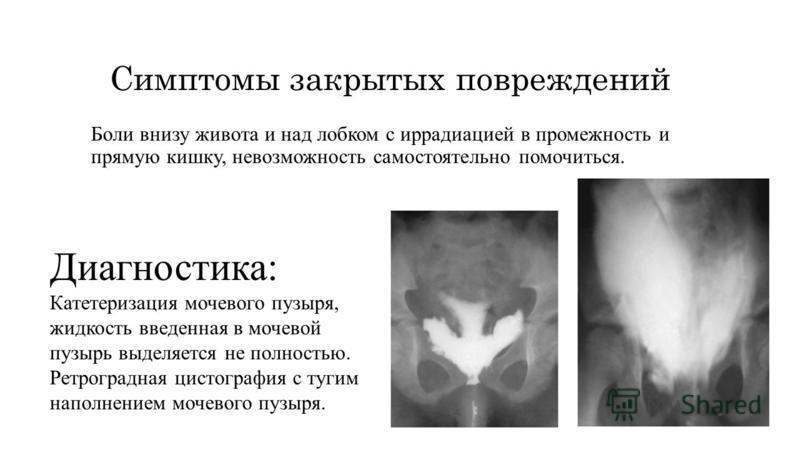 Симптомы закрытых повреждений Боли внизу живота и над лобком с иррадиацией в промежность и прямую кишку, невозможность самостоятельно помочиться. Диагностика: Катетеризация мочевого пузыря, жидкость введенная в мочевой пузырь выделяется не полностью.