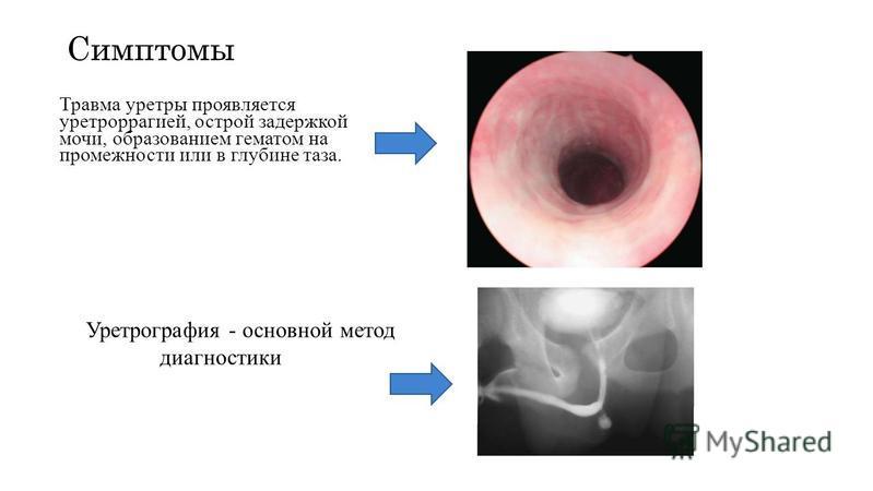 Симптомы Травма уретры проявляется уретроррагией, острой задержкой мочи, образованием гематом на промежности или в глубине таза. Уретрография - основной метод диагностики