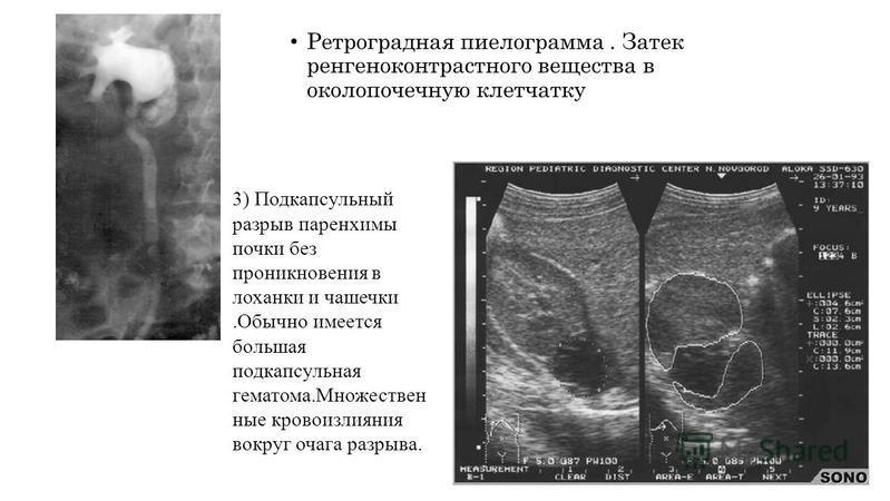 Ретроградная пиелограмма. Затек рентгеноконтрастного вещества в околопочечную клетчатку 3) Подкапсульный разрыв паренхимы почки без проникновения в лоханки и чашечки.Обычно имеется большая подкапсульная гематома.Множествен ные кровоизлияния вокруг оч